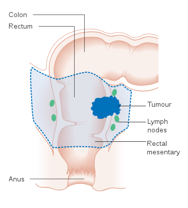 rectal-cancer-treatment-types
