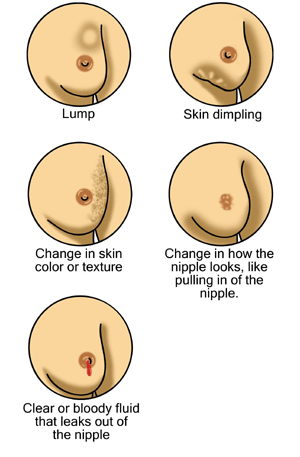 treatment-of-breast-cancer-types-stages