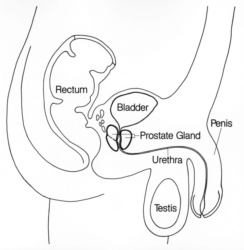 prostate-cancer-treatment-stages
