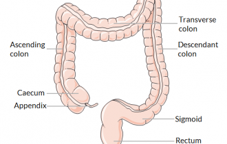 colon-cancer-vs-rectal-cancer-features
